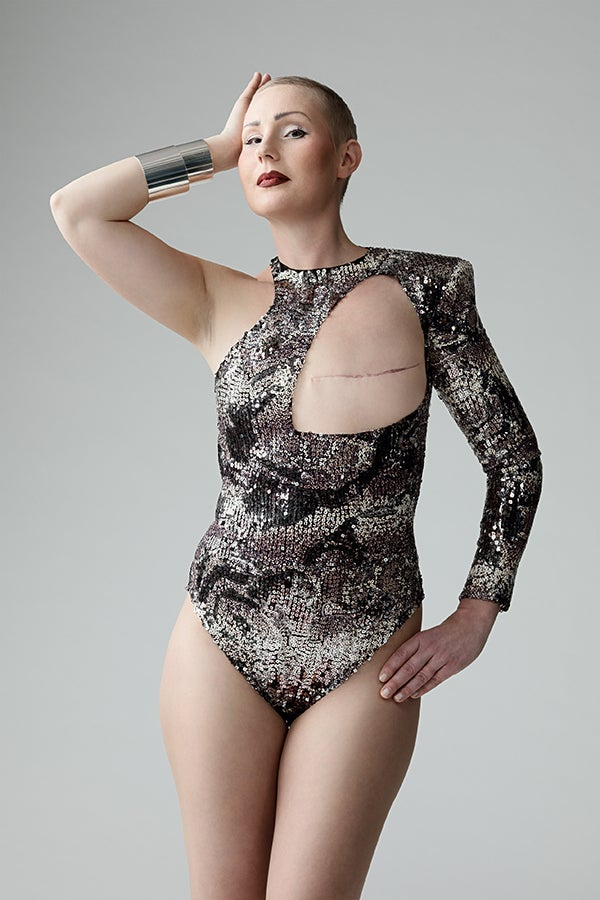 A breast cancer survivor who had a mastectomy models one of Monokini 2.0's designs