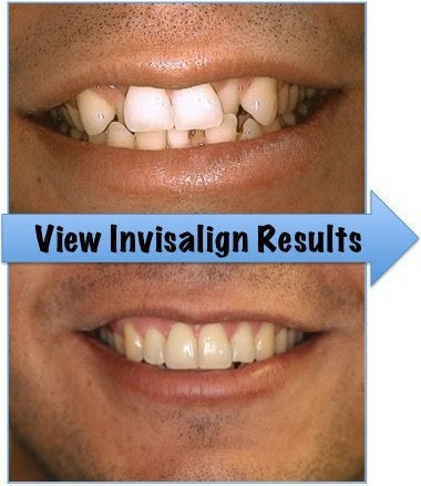 Invisalign photos before and after