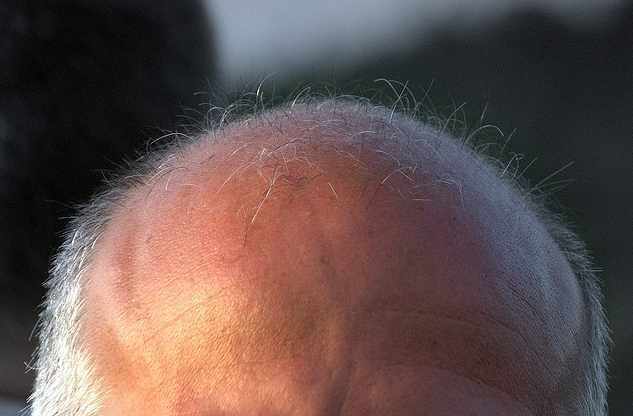 Latisse thinning hair