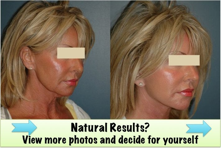 natural plastic surgery results