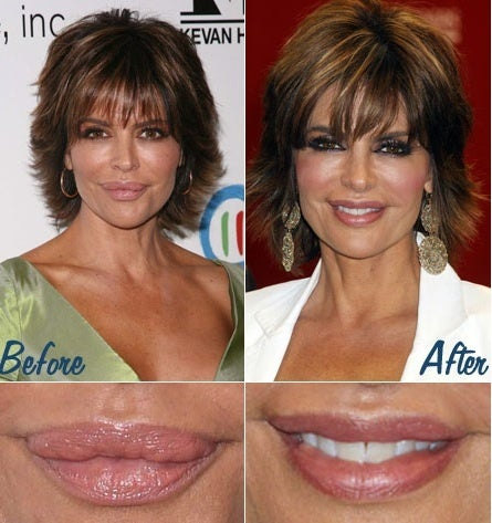Lisa Rinna's lip reduction