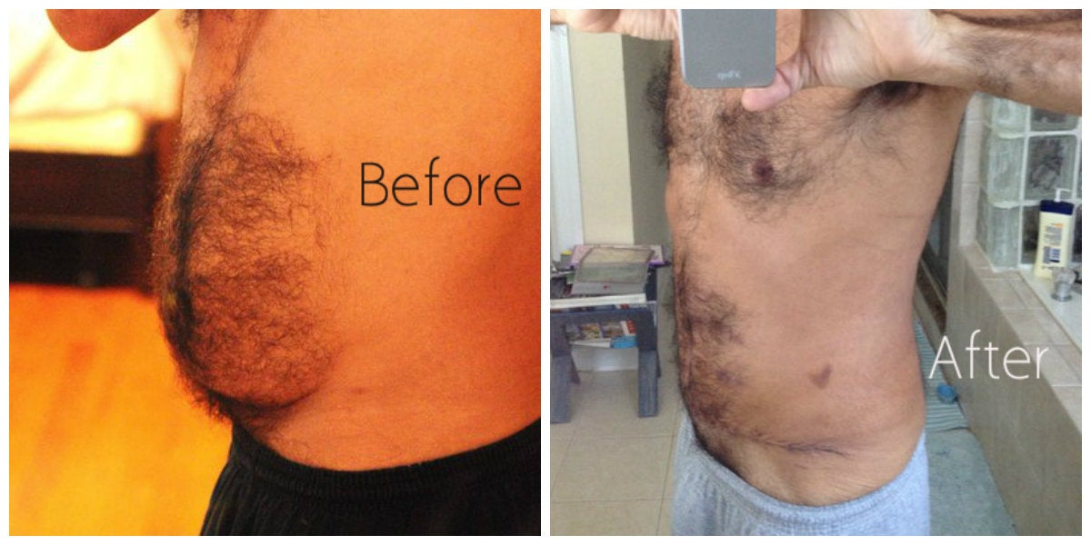 male belly before and after tummy tuck