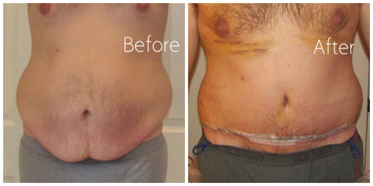 male abdomen with bruising before and after tummy tuck