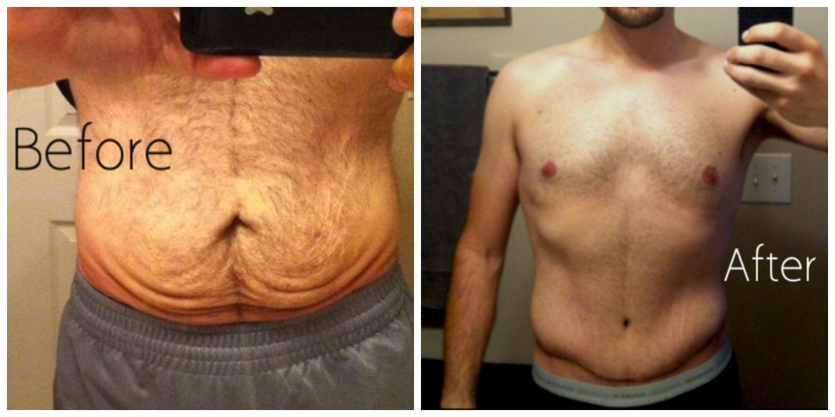 male hairy abdomen before and after tummy tuck
