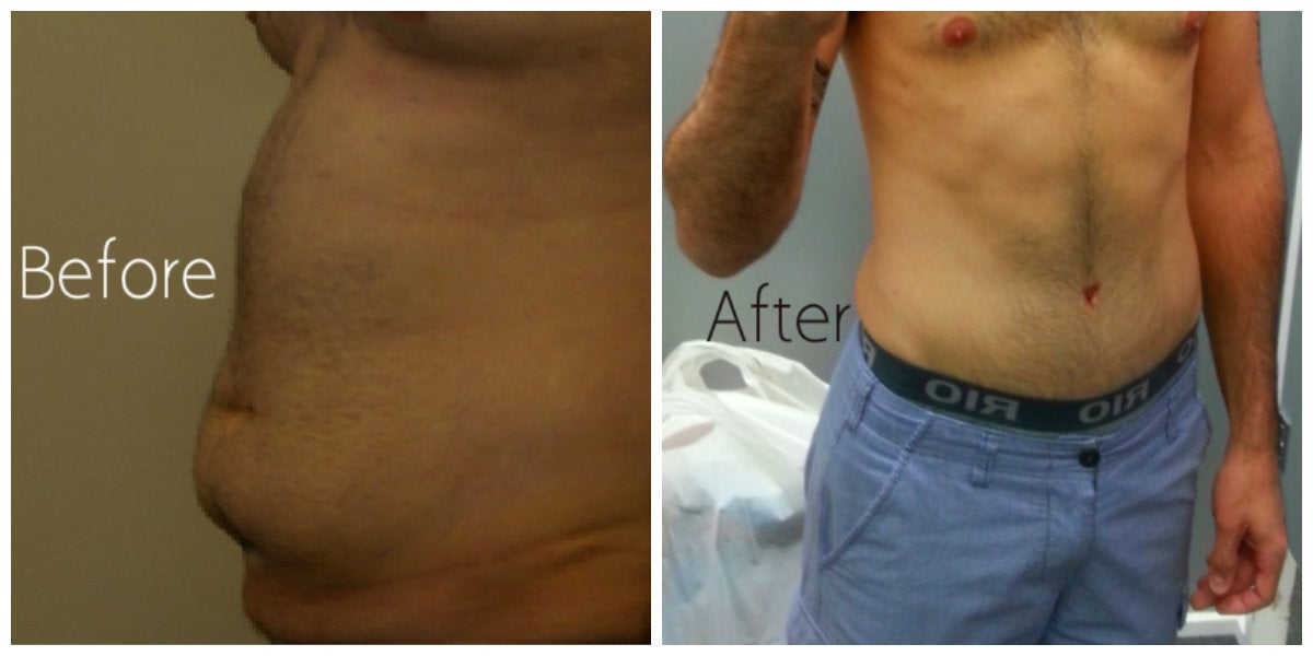 male abdomen blue shorts before and after tummy tuck