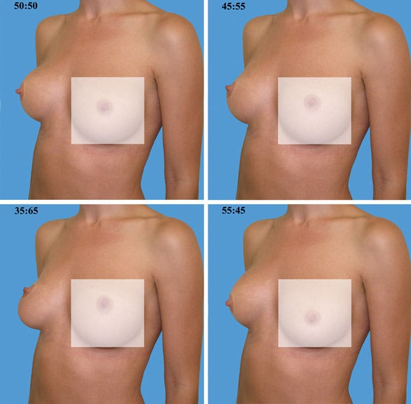 Model Breasts Morphed Into Different Ratios