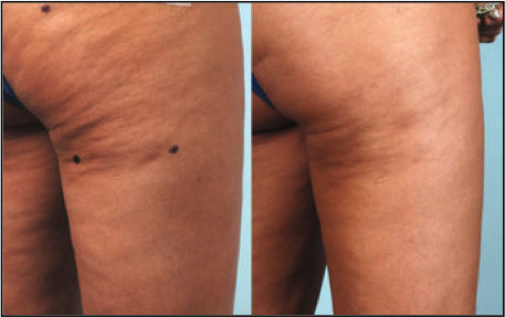 before and after Cellulaze