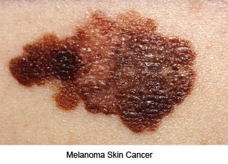 90 percent of Skin Cancer is caused by exposure to the sun