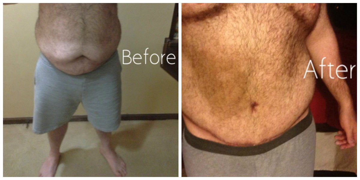 male large belly before and after tummy tuck
