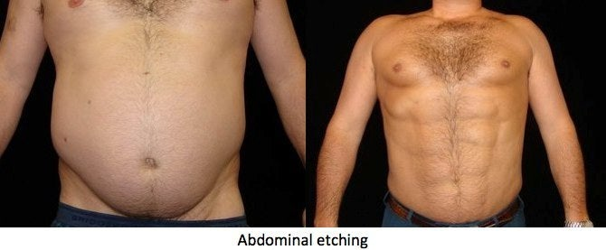 ab etching before and after