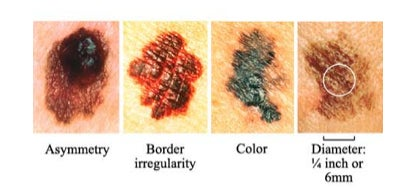 ABCD of skin cancer moles