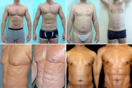 Liposculpture ab etching before and after photos -- six-pack abs without having to work extra hard