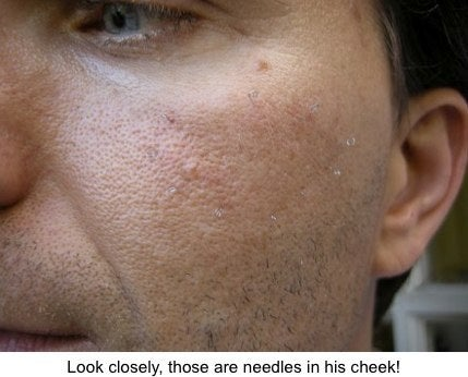 Acupuncture facelift