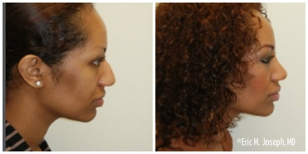 african american woman bump on nose rhinoplasty before and after