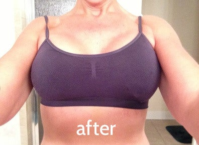 after breast augmentation for breast asymmetry