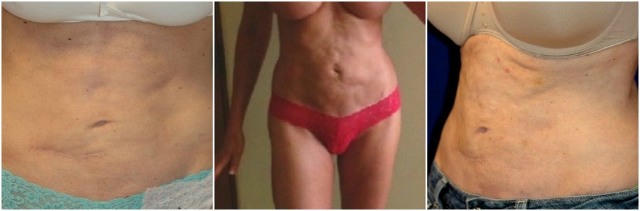 after smart lipo