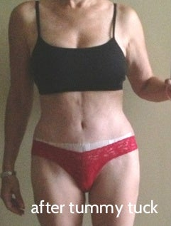 after tummy tuck botched liposuction