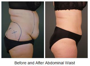 Dr. Amron liposuction on waist before and after