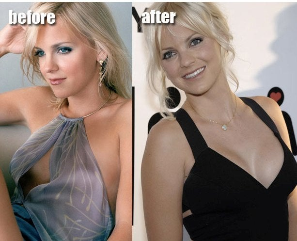 Anna Faris before and after breast implants