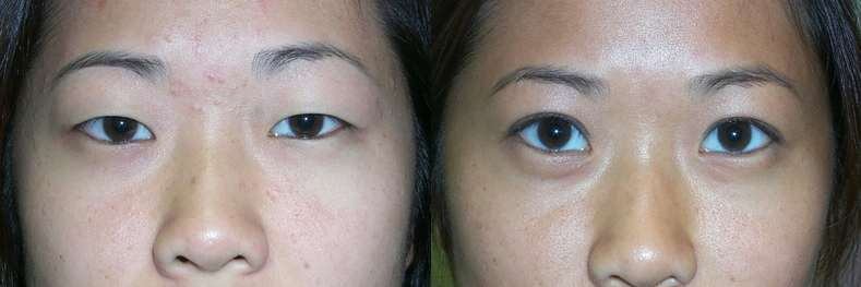 Asian Eyelid Surgery is Top Interest in San Francisco
