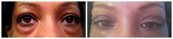 before after eyelid surgery eyelift blepharoplasty bags
