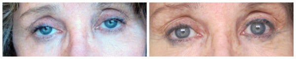 before after eyelid surgery blepharoplasty blue eyes eye lift