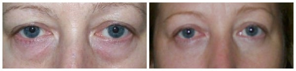 before after photo eyelid blepharoplasty bags under eyes
