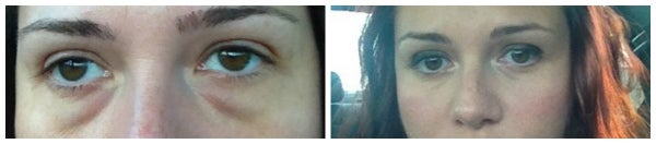 before after photo eyelid surgery blepharoplasty brown eyes bags