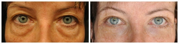 before after eyelid surgery blepharoplasty photo bags green eyes