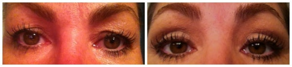 before after eyelid surgery blepharoplasty brown eyes eye lift