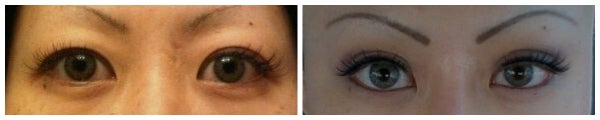 before after asian eyelid surgery photo