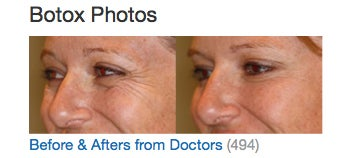 before after from doctors botox photos