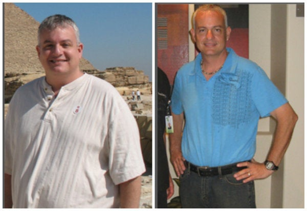 before after gastric bypass 12