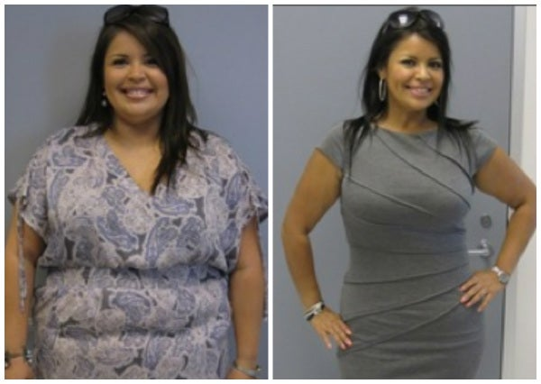 before after gastric bypass