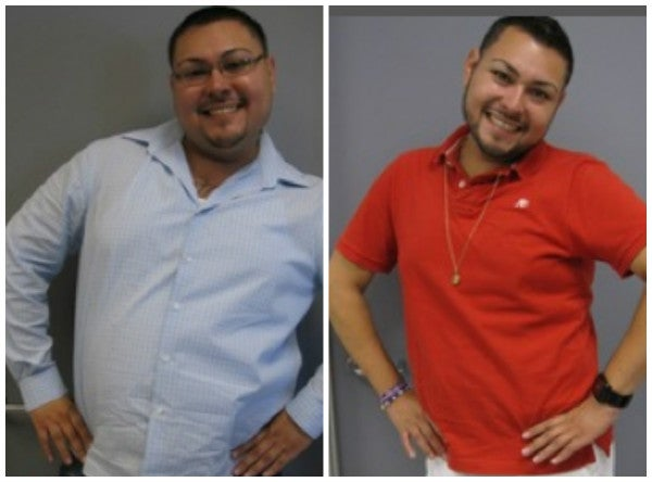before after gastric surgery photo