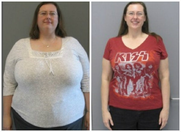 before after bariatric surgery photo