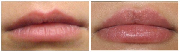 before after juvederm lips
