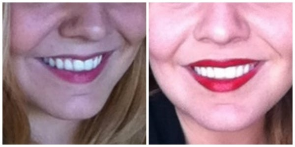 before after lip augmentation restylane