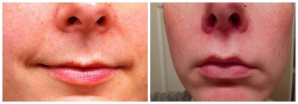 before after lip lift and fat transfer