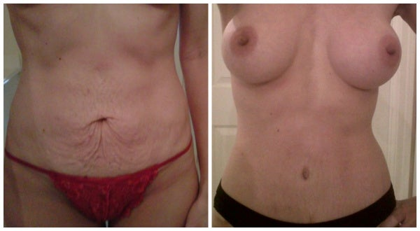 before after mommy makeover belly sagging