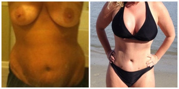 before after mommy makeover black bikini