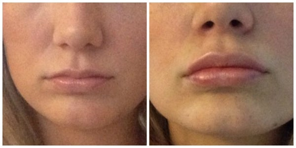 before after restylane lips