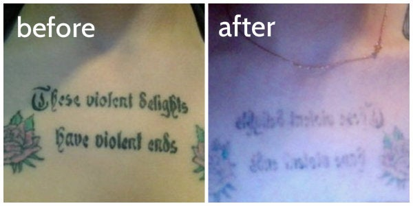 before and after tattoo removal photo chest