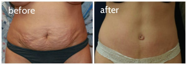 before and after tummy tuck dr steve laverson womans abdomen