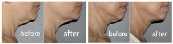 before-after-photos-ultherapy