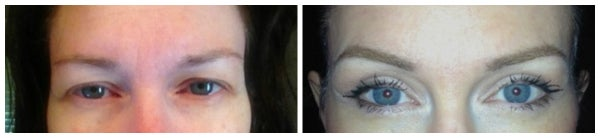 before after eyelid surgery eyelift blepharoplasty blue eyes