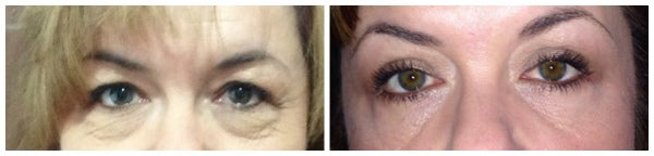 before after eyelid surgery photo 50 plus bags upper eyelift