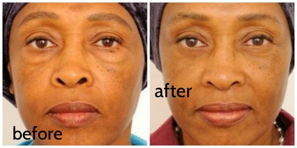 before and after eyelid surgery dr. togba