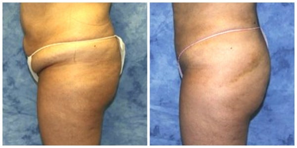 womans abdomen and thighs before and after lipo