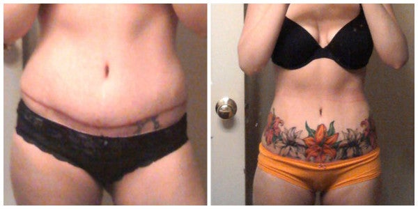 womans abdomen with tattoo before and after liposuction